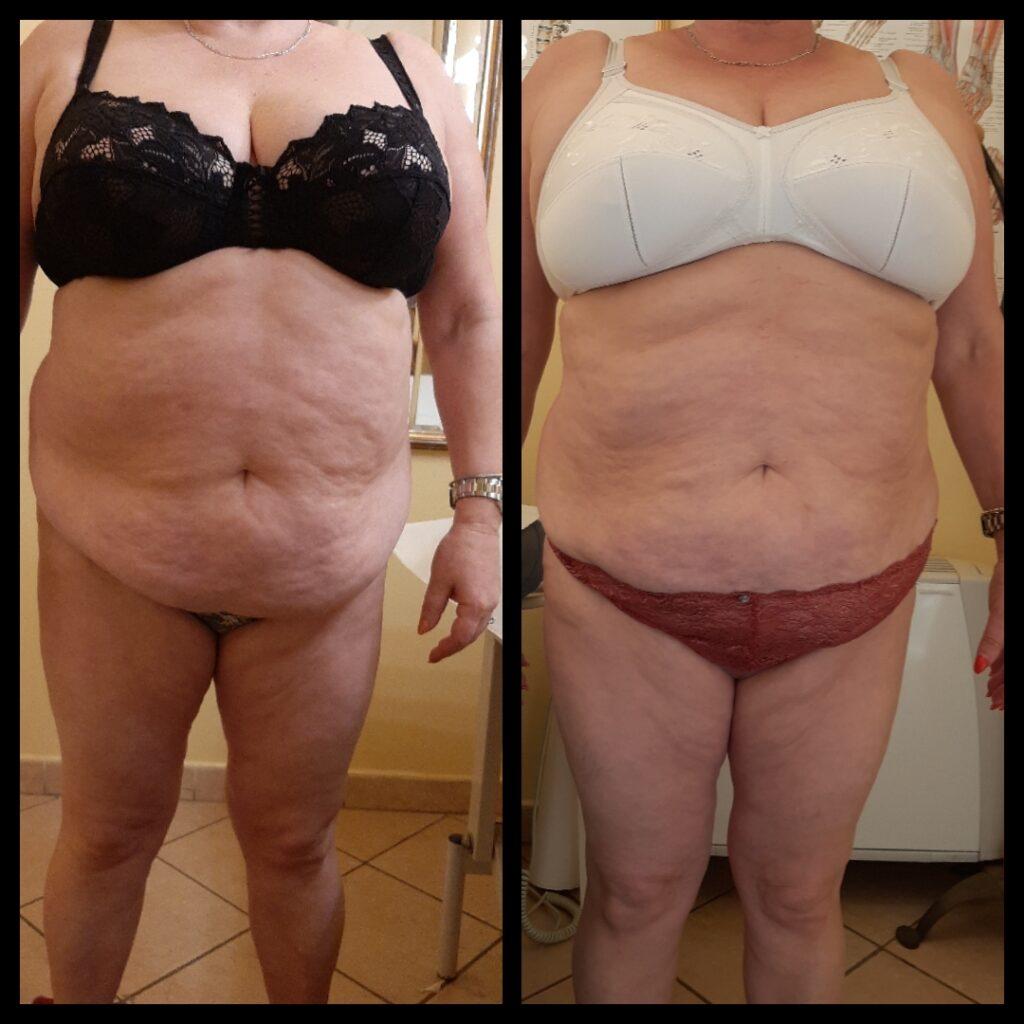 Prima e dopo il-trattamento